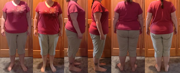 Michelle's 25 lb Gone Before and Afters