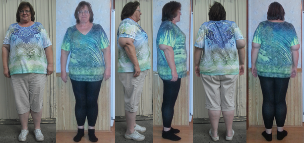 Polly 40 lbs Gone in 7 Weeks with a Raw Food Diet Before and Afters