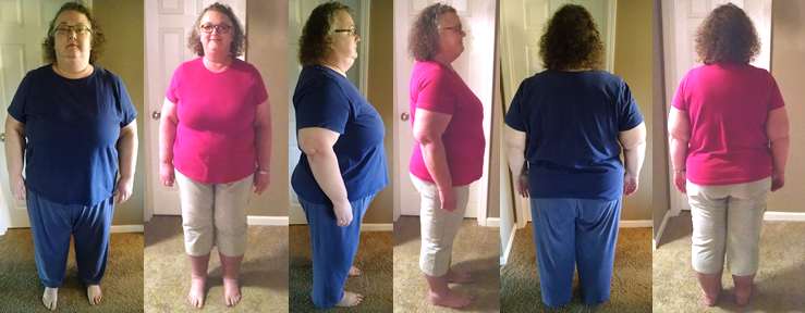 SunnyB's 84 lbs Gone in 3 Months Before and Afters