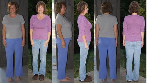 Krinkels 25 lbs Gone Before and Afters
