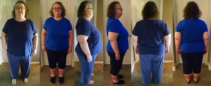 SunnyB's 60 lbs Gone in 2 Months Before And Afters