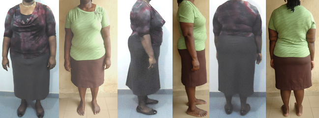 RawVee's 40 lbs Gone Before and Afters